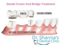 Dr. Dinesh Sharma, Dentist in Chandigarh